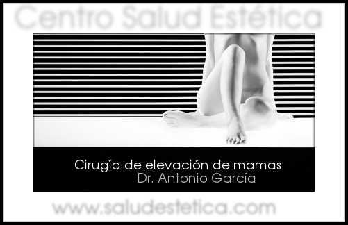 elevacion-mamas-tenerife 2_phixr