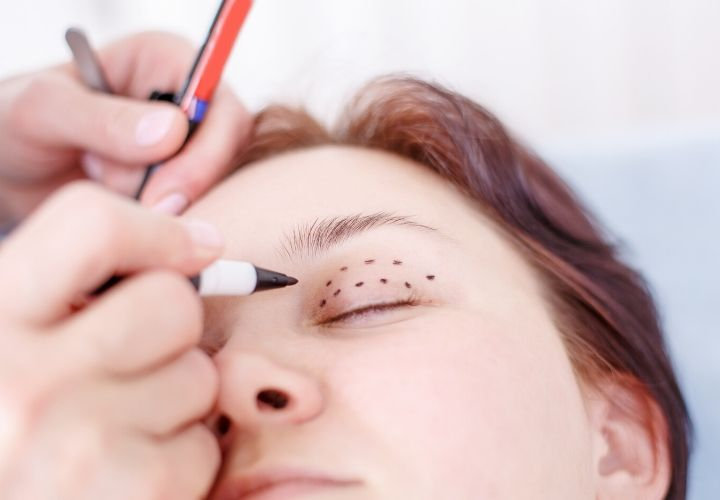 Blepharoplasty in Tenerife